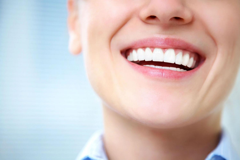 teeth-whitening-image